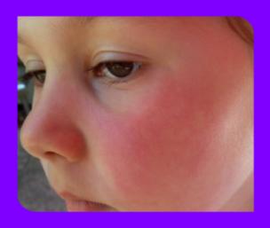Лечение инфекционной эритемы у детей фото
